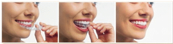 Image result for invisalign pictures