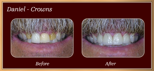 Anderton Dental Group-Dr. Jared Anderton-South Ogden Dentist-before after Daniel