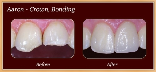 Anderton Dental Group-Dr. Jared Anderton-South Ogden Dentist-before after aaron