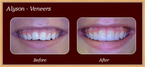 Anderton Dental Group-Dr. Jared Anderton-South Ogden Dentist-before after alyson