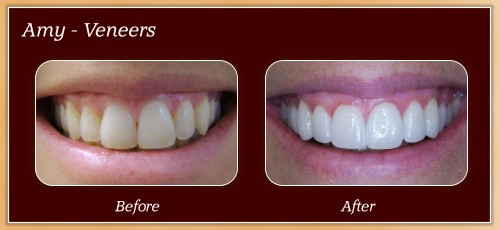 Anderton Dental Group-Dr. Jared Anderton-South Ogden Dentist-before after amy