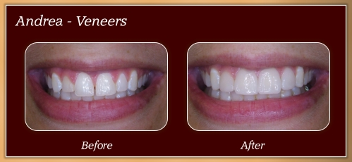 Anderton Dental Group-Dr. Jared Anderton-South Ogden Dentist-before after andrea