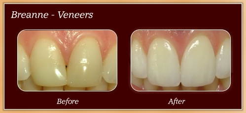 Anderton Dental Group-Dr. Jared Anderton-South Ogden Dentist-before after breanne