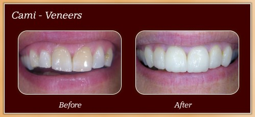 Anderton Dental Group-Dr. Jared Anderton-South Ogden Dentist-before after cami