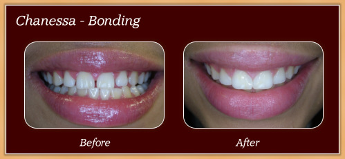 Anderton Dental Group-Dr. Jared Anderton-South Ogden Dentist-before after chanessa
