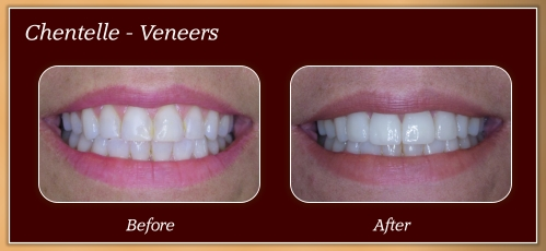 Anderton Dental Group-Dr. Jared Anderton-South Ogden Dentist-before after chentelle