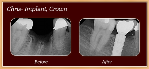Anderton Dental Group-Dr. Jared Anderton-South Ogden Dentist-before after chriss