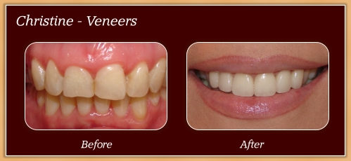 Anderton Dental Group-Dr. Jared Anderton-South Ogden Dentist-before after christine
